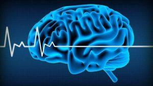 คำเสนอแนะใหม่เกี่ยวกับสภาวะสมองตาย